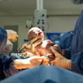 special news-Baby 'Born Twice' After Miracle Surgery In USA