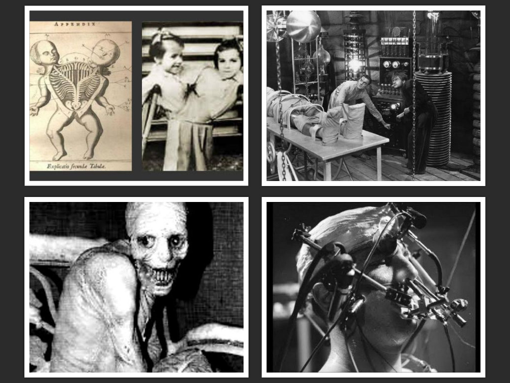 0-most-horrifying-medical-experiments-on-humans