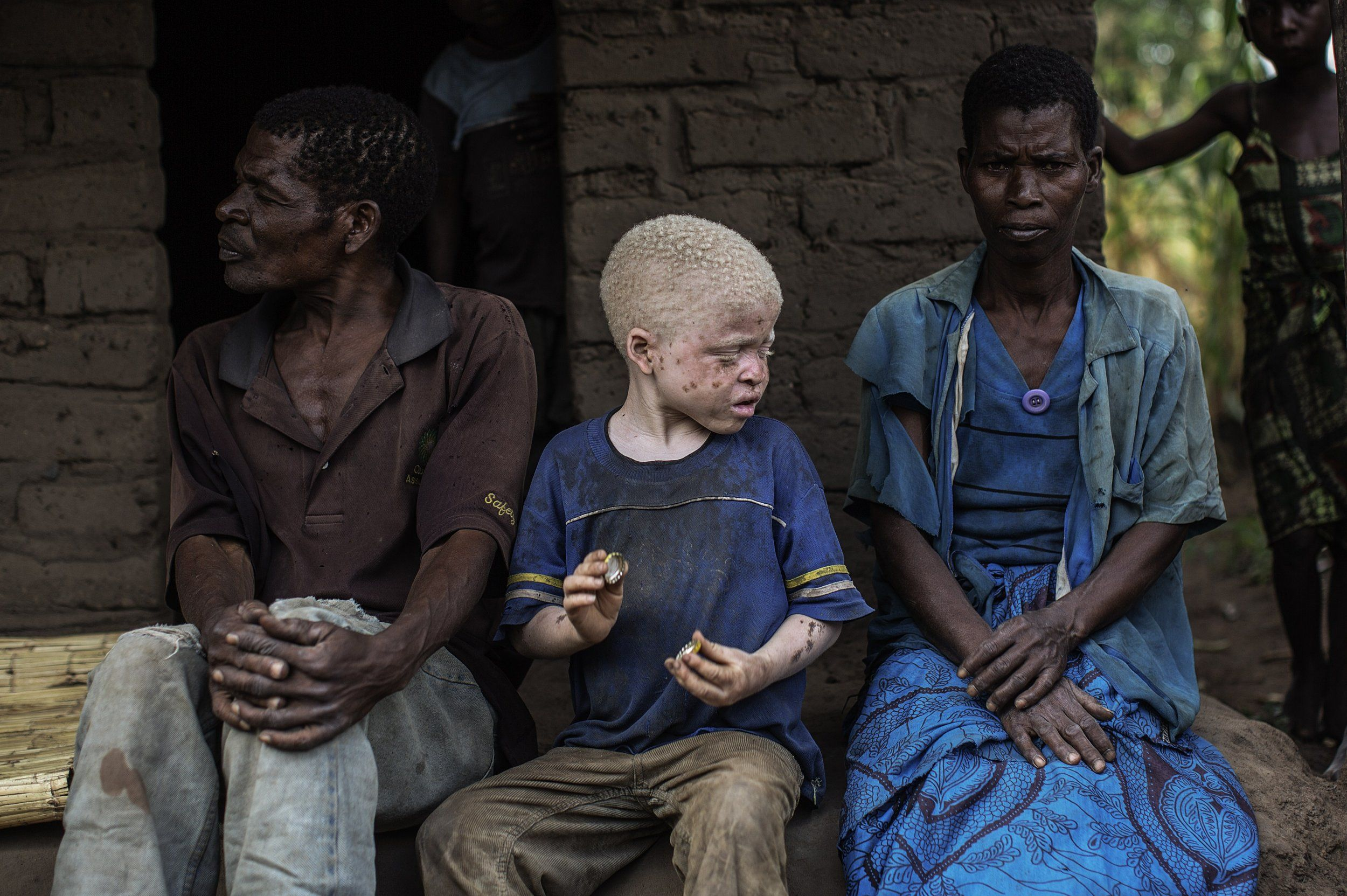 special news- albinos are being hunted in africa and make madicine with the body organ