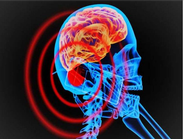 mobile phone use make brain cancer