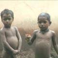 Malnutrition in banda ghati