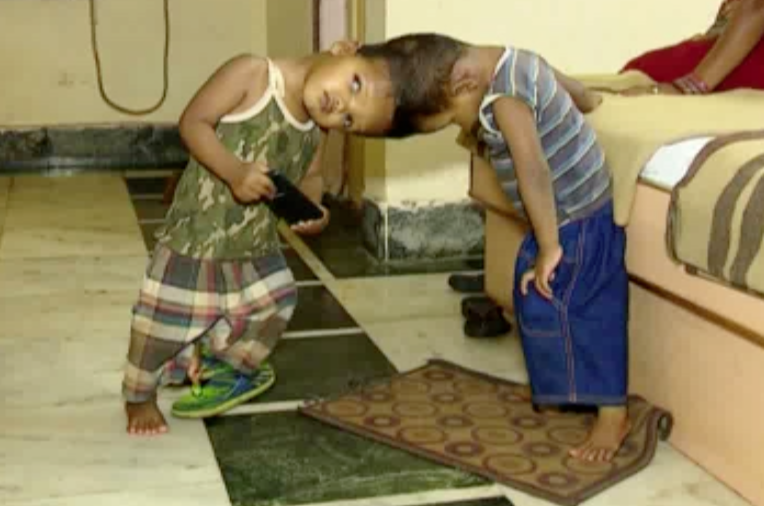first-phase-operation-sucessful-done-of-conjoined-twins-of-kandhamal