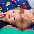 Formerly conjoined McDonald twins finally go home