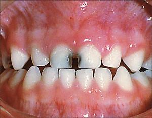 teeth florosis