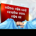 Conjoined Twins' Surgery: Interview With Doctor Ashok Mohapatra