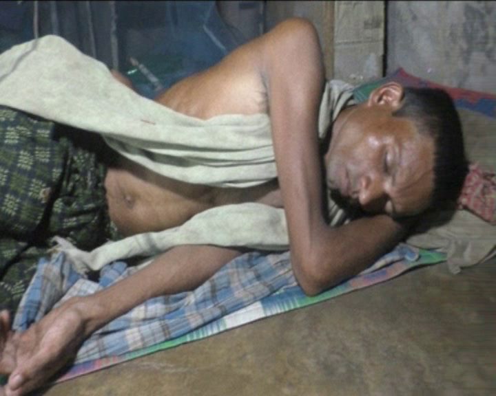 man suffering due to wrong operation